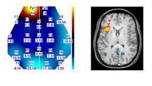 Brain_image_maps